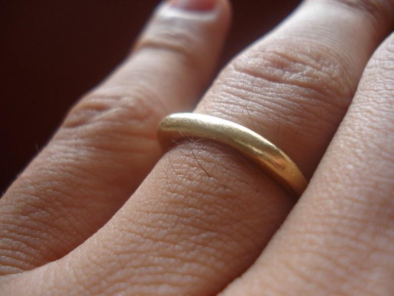 Почему от золотых колец чернеет кожа
